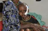 Desgarrador testimonio de la hambruna en Somalia